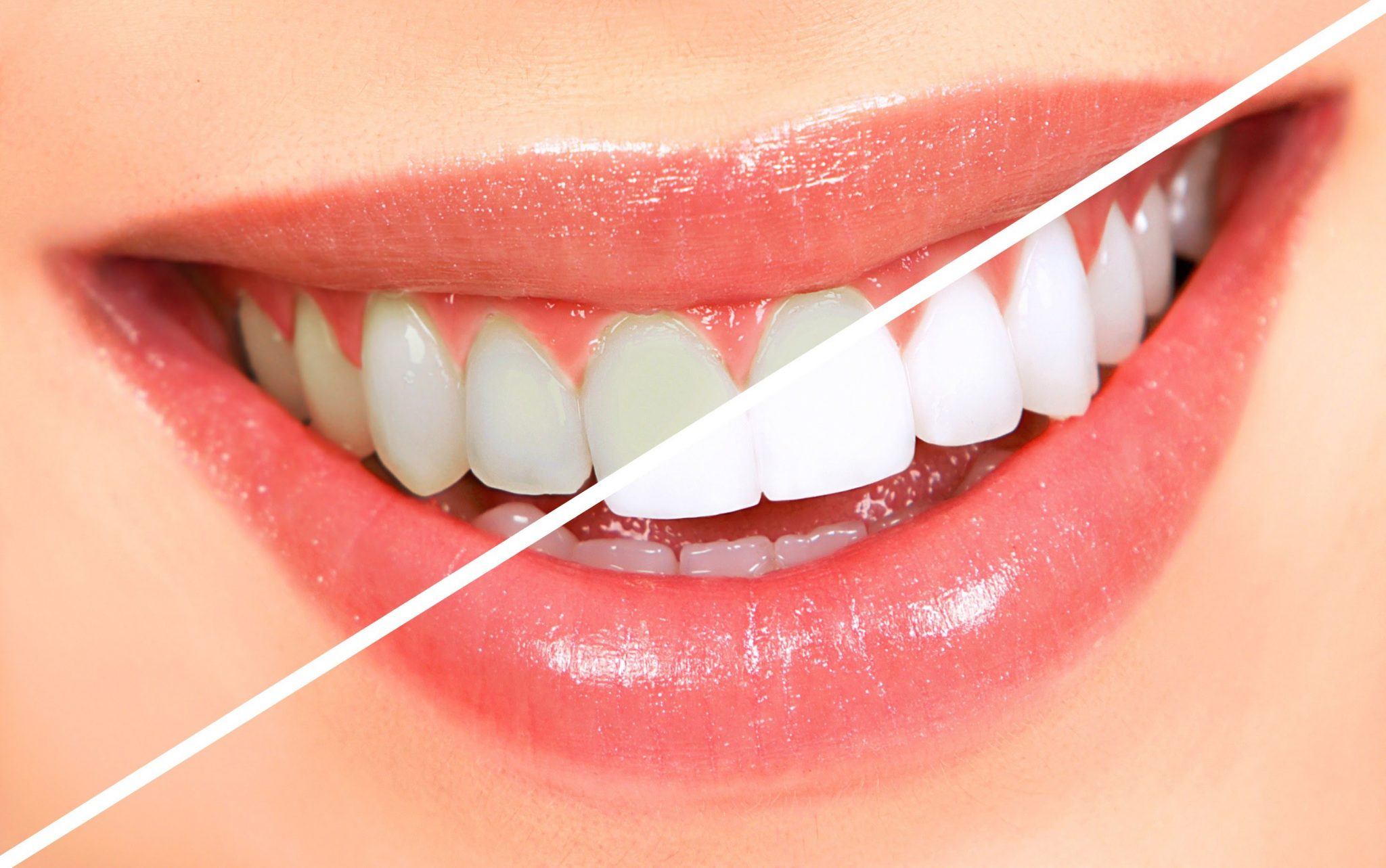 Dentist In Vicksburg Ms Teeth Whitening